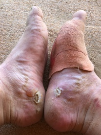 Blisters became a problem